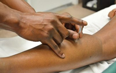 Does Acupuncture Work to Reduce Stress?